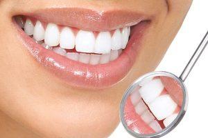 Bọc răng sứ: Răng đều đẹp chuẩn đường cười xinh hết ý