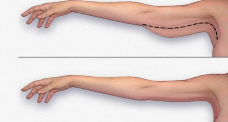 giảm béo bắp tay bắp chân