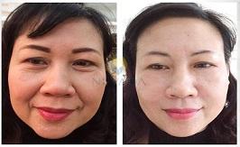 Kết quả nâng cơ trẻ hoá da