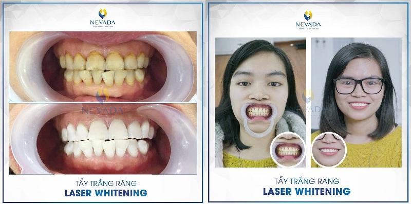 tây trắng răng white max