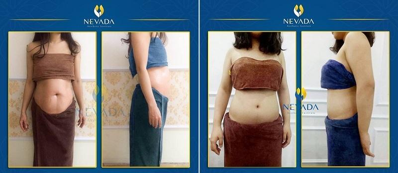 đẩy tinh chất giảm béo
