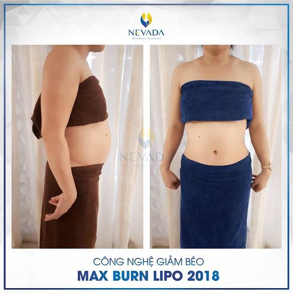Giảm béo toàn thân Max Burn Lipo có đau không?