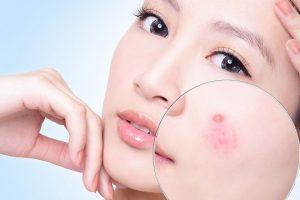 Bí quyết trị sẹo lõm lâu năm bằng vitamin E – cứu tinh cho làn da phái đẹp