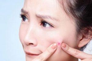 Tư vấn sẹo rỗ: Sẹo rỗ do mụn để lại có chữa được không?