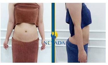 Kết quả của chị Thu Hương giảm béo tại Nevada