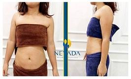 dịch vụ giảm béo Nevada Hà nội
