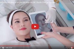 Livestream quá trình nâng cơ trẻ hóa da của MC Huyền Châu