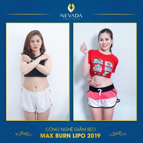 Quy trình giảm béo Max Burn Lipo