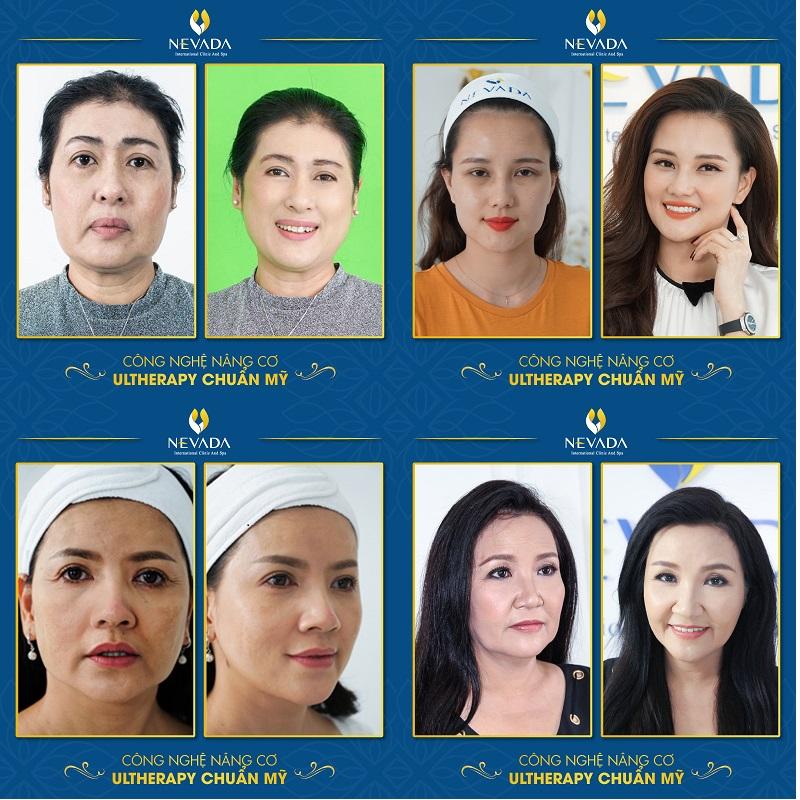Hình ảnh khách hàng sử dụng các dịch vụ thẩm mỹ da công nghệ cao, nha khoa thẩm mỹ