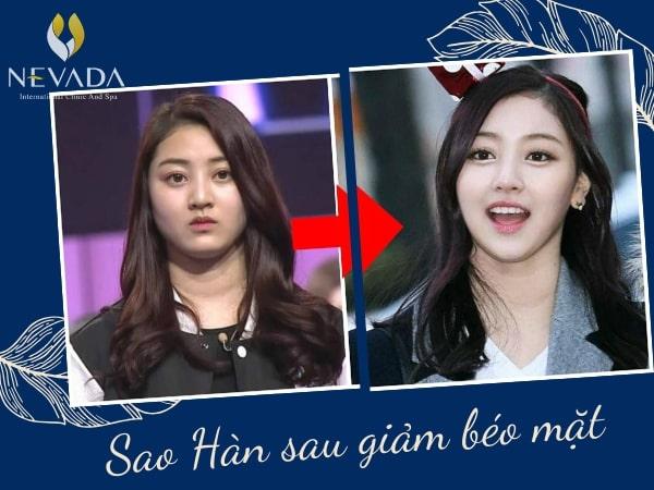 Cách giảm béo mặt của sao Hàn, Cách giảm béo mặt của idol kpop