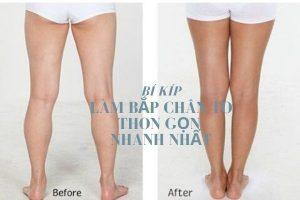 Top 6 cách làm bắp chân to thon gọn nhanh nhất giúp chị em tự tin khoe chân nuột nà