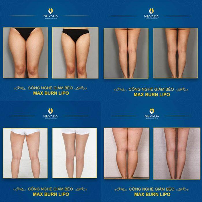 ngâm chân có giúp giảm cân không, ngâm chân giảm cân , ngâm chân có giảm cân , ngâm chân giúp giảm cân, ngâm chân để giảm cân, ngâm chân giảm mỡ, ngâm chân giảm mỡ bắp chân, ngâm chân giảm mỡ bụng, ngâm chân giảm béo, cách ngâm chân giảm mỡ