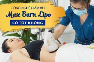 Công nghệ giảm béo Max Burn Lipo có tốt không? Tất tần tật review công nghệ giảm béo Max Burn Lipo cấp tốc thời đại 4.0