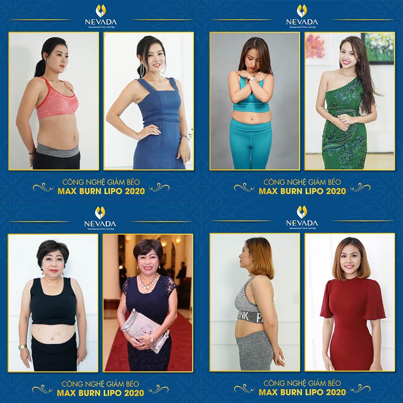 đánh mỡ bụng có ảnh hưởng gì không, đánh tan mỡ bụng có ảnh hưởng gì không, giảm mỡ bụng có ảnh hưởng gì không