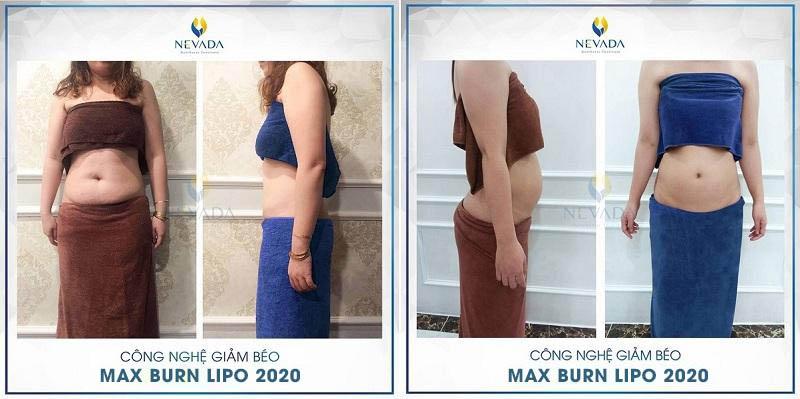 địa chỉ giảm béo uy tín, giảm béo ở đâu an toàn