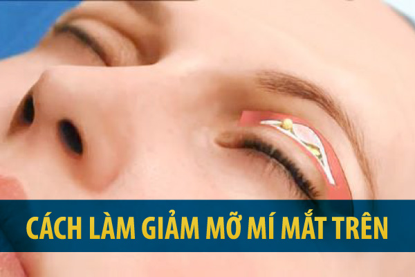 giảm mỡ mí mắt, cách giảm mỡ mí mắt trên, massage giảm mỡ mí mắt trên, cách làm giảm mỡ mí mắt trên, làm tan mỡ mí mắt trên